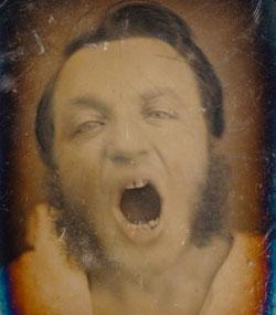 Hombre con la boca abierta. The Getty